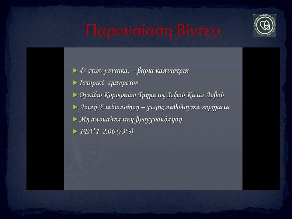 Παρουσίαση Βίντεο