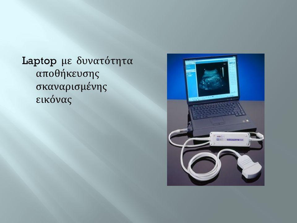 Laptop με δυνατότητα αποθήκευσης σκαναρισμένης εικόνας