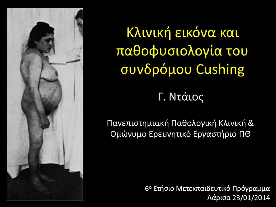 Κλινική εικόνα και παθοφυσιολογία του συνδρόμου Cushing