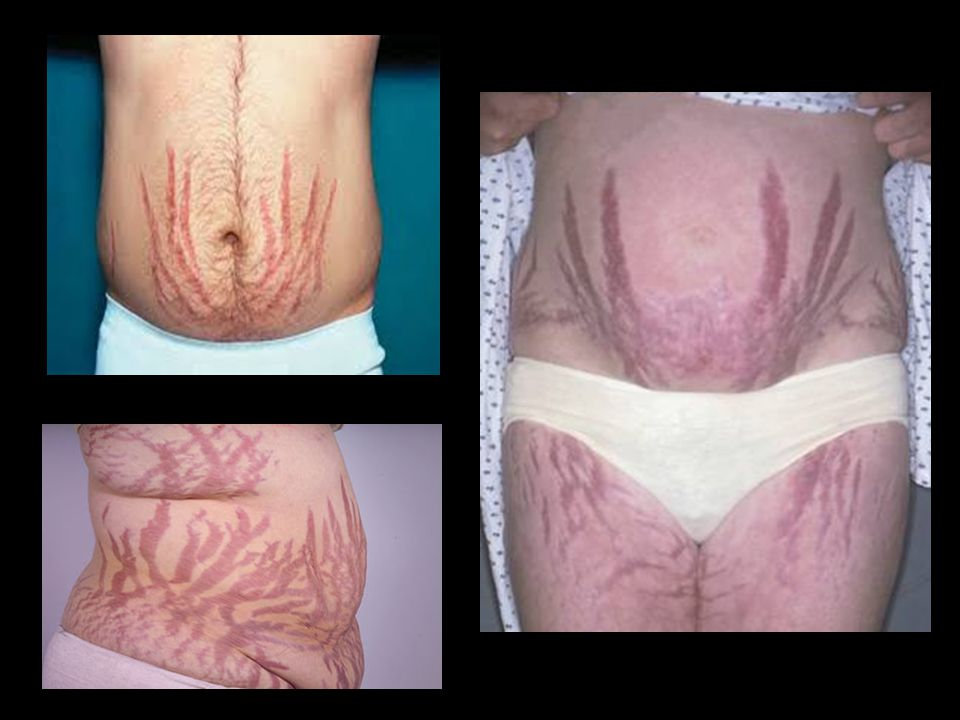 Striae — Purple striae occur as the fragile skin stretches due to the enlarging trunk, breasts, and abdomen (picture 6). The striae appear as wide, reddish-purple streaks because the increasingly thin skin does not hide the color of venous blood in the underlying dermis. Striae occur most often in younger patients, can be numerous, and are most common on the abdomen and lower flanks; however, they can also occur on the breasts, hips, buttocks, shoulders, upper thighs, upper arms, and axillae