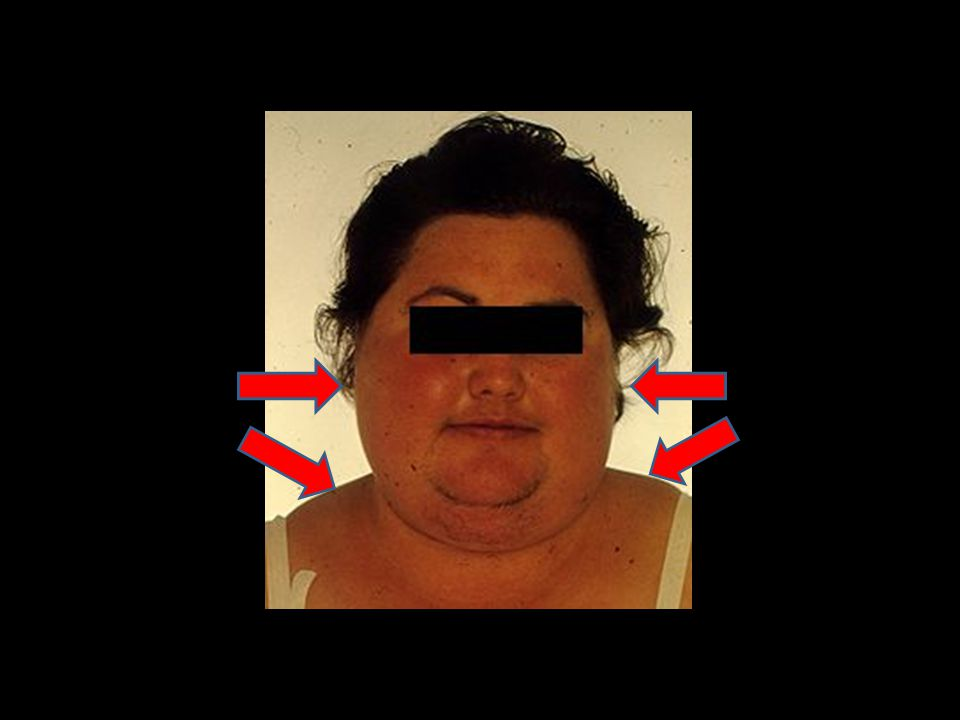 30-year-old woman with Cushing s disease showing round, plethoric moon face, facial hirsutism, and increased supraclavicular fat pads.