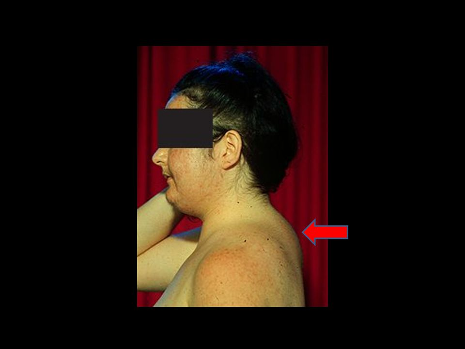 25-year-old woman with Cushing s disease who has facial hirsutism and acne, increased supraclavicular fat pads, and a dorsocervical fat pad ( buffalo hump ).
