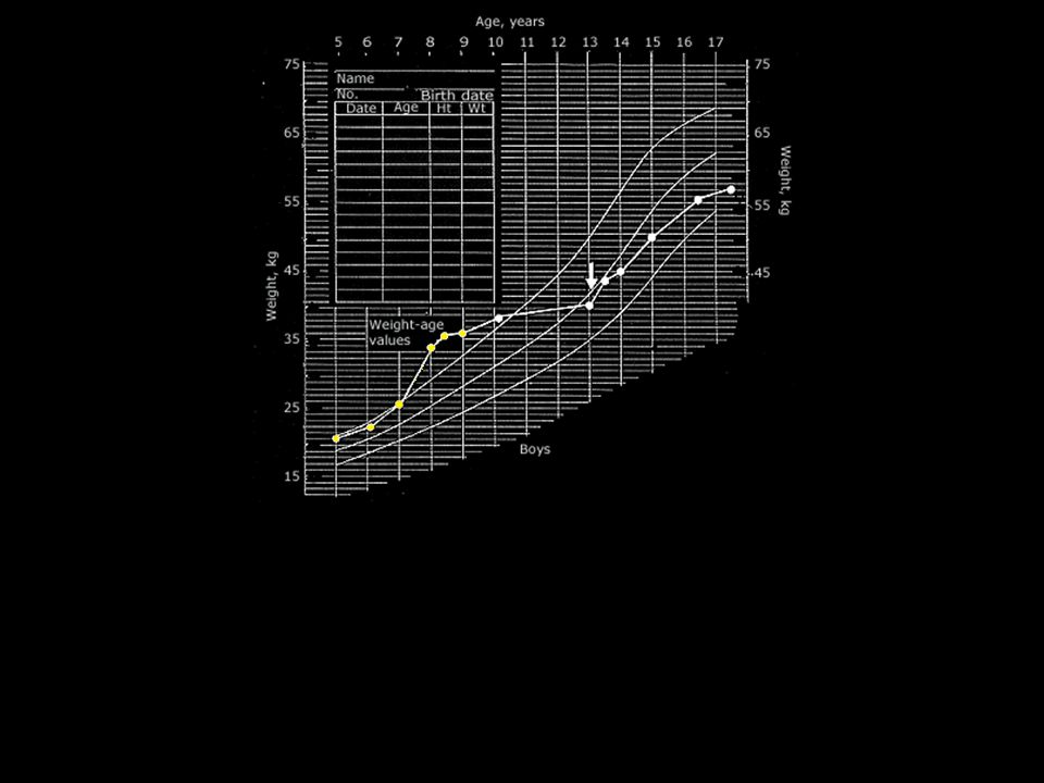 Chronological height and weight chart of a boy who developed overt Cushing s disease at about age seven years. He stopped growing and minimized his weight gain for about five years with a strict diet and vigorous exercise program. He was treated with conventional megavoltage pituitary irradiation at age 13 years (arrows). He resumed growth at the same velocity as boys of his age, but there was no catch-up growth.