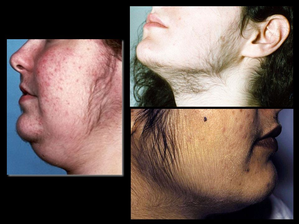 Hirsutism, which is usually mild and limited to the face, but can be generalized.