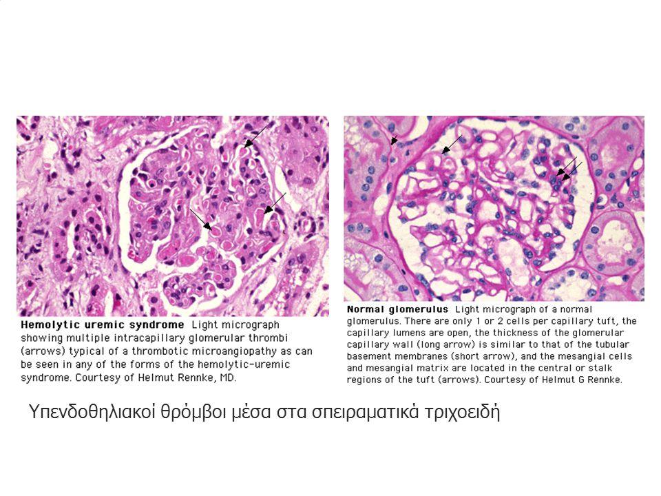 Υπενδοθηλιακοί θρόμβοι μέσα στα σπειραματικά τριχοειδή