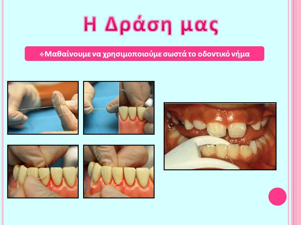 Μαθαίνουμε να χρησιμοποιούμε σωστά το οδοντικό νήμα