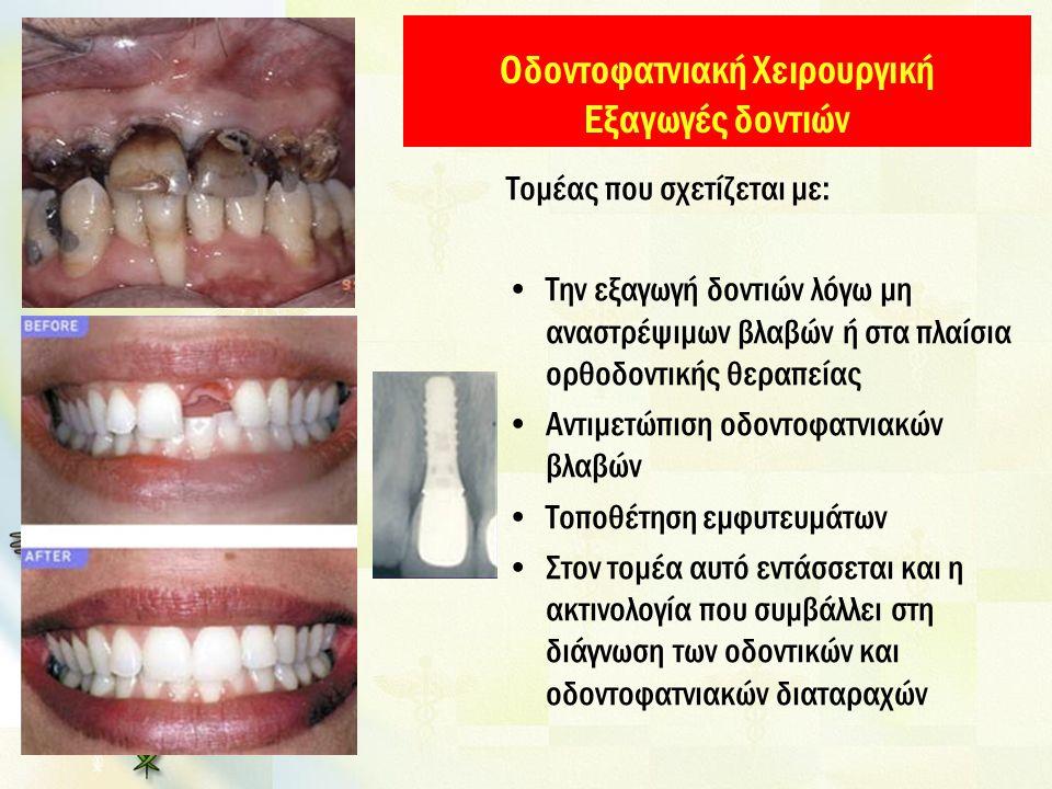 Οδοντοφατνιακή Χειρουργική Εξαγωγές δοντιών
