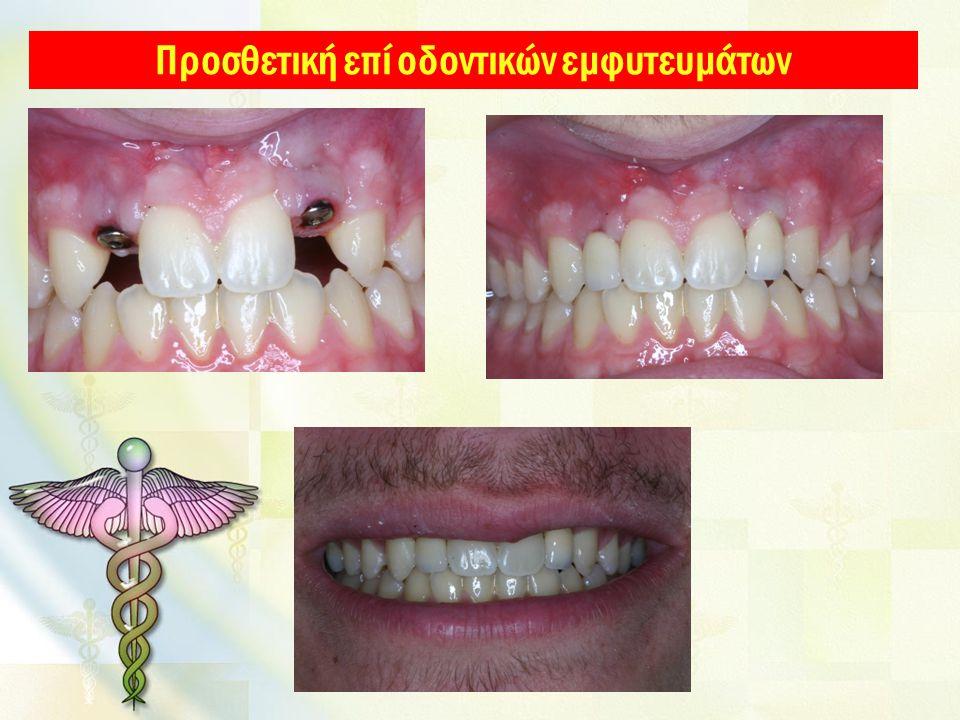 Προσθετική επί οδοντικών εμφυτευμάτων