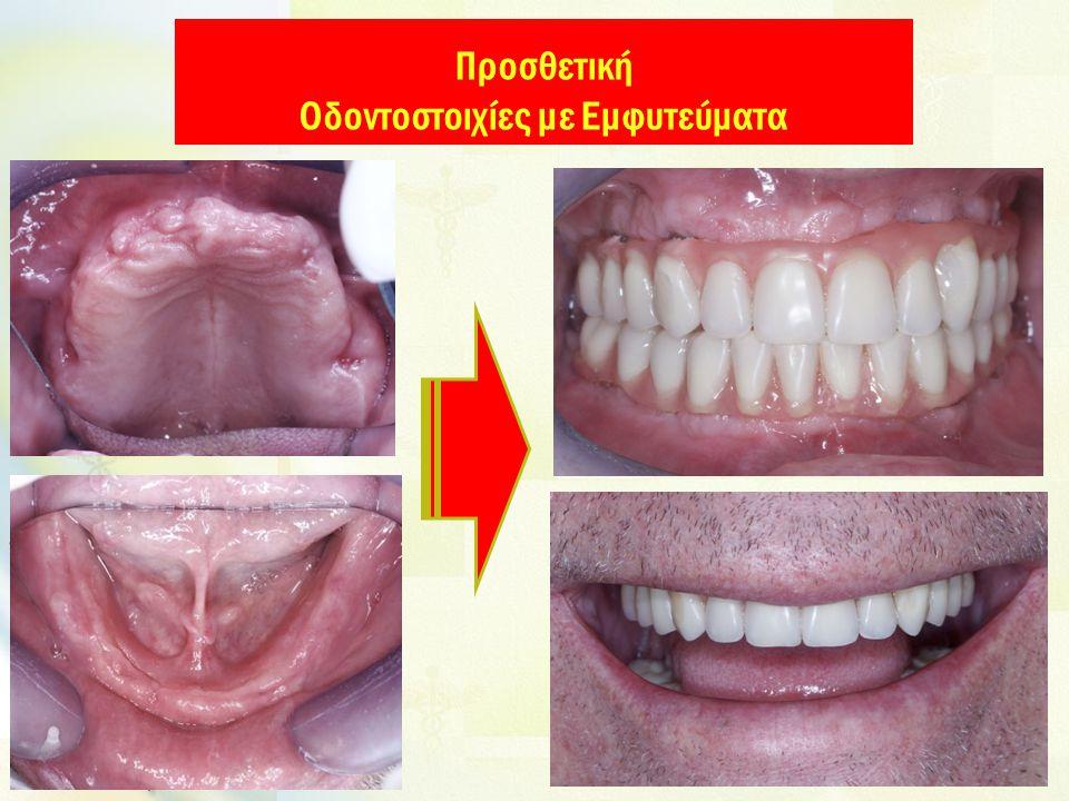Προσθετική Οδοντοστοιχίες με Εμφυτεύματα