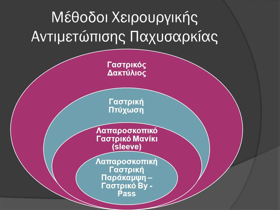 Μέθοδοι Χειρουργικής Αντιμετώπισης Παχυσαρκίας