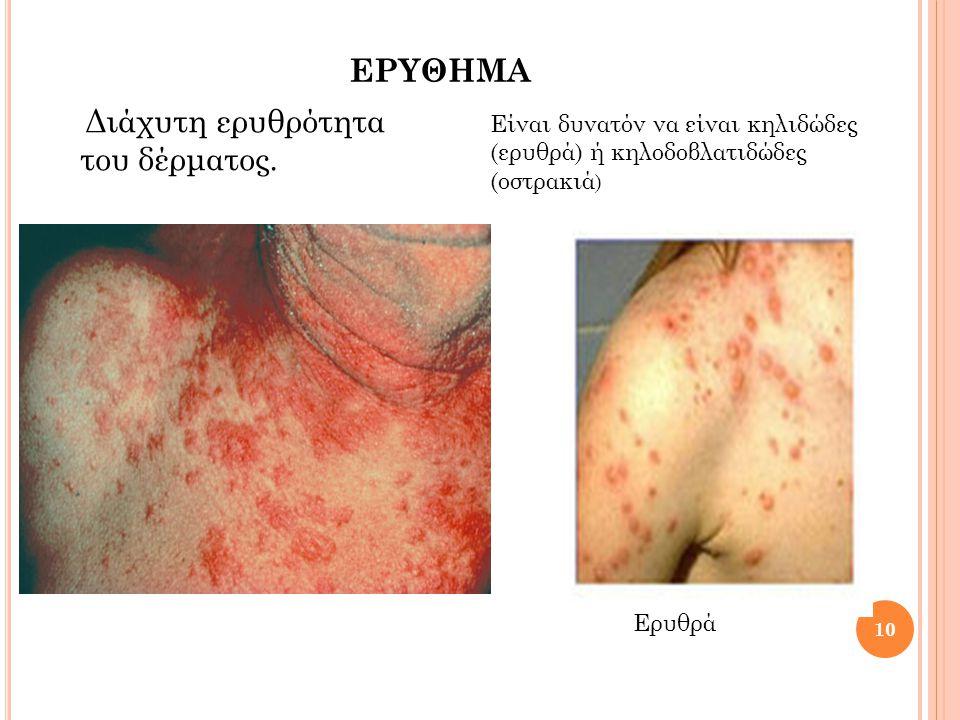 ερυθημα Διάχυτη ερυθρότητα του δέρματος.