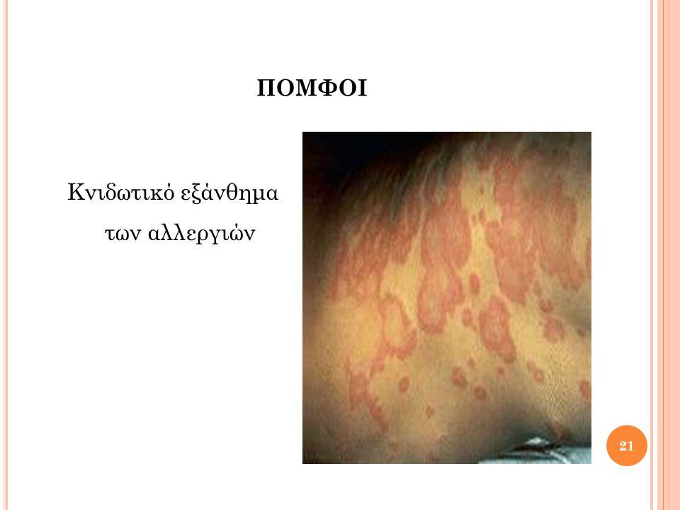 Κνιδωτικό εξάνθημα των αλλεργιών