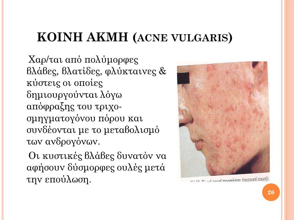 ΚΟΙΝΗ ΑΚΜΗ (acne vulgaris)