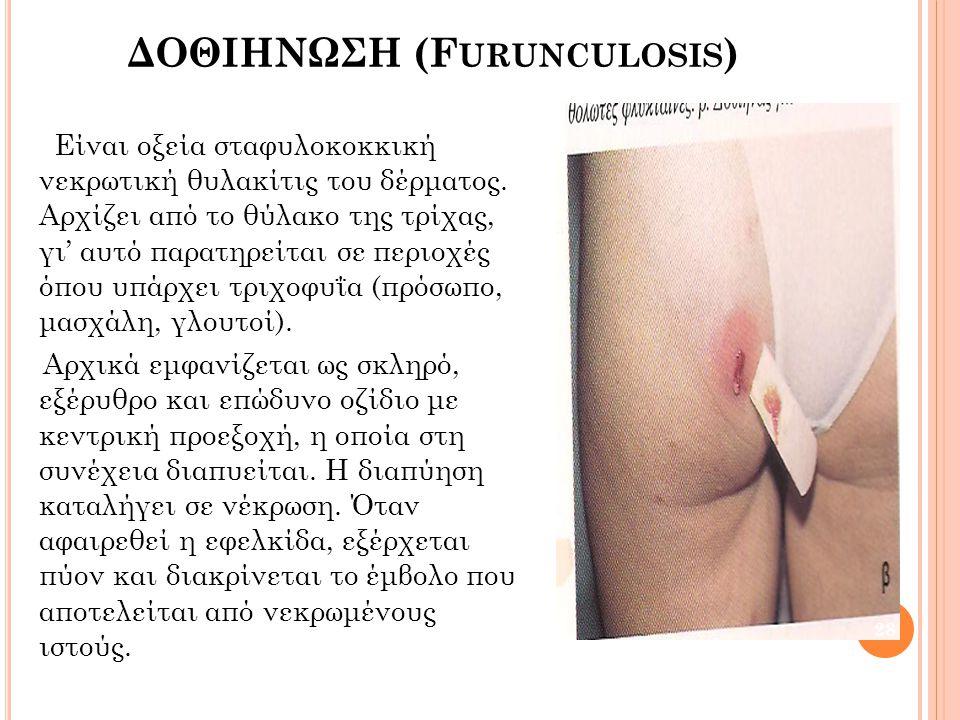 ΔΟΘΙΗΝΩΣΗ (Furunculosis)