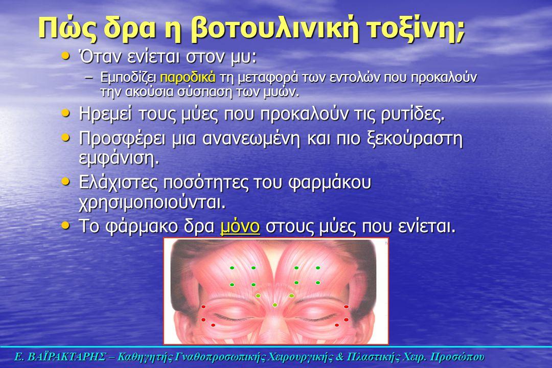 Πώς δρα η βοτουλινική τοξίνη;