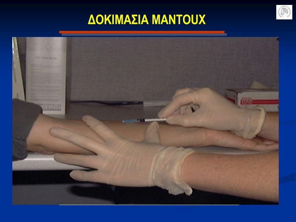 ΔΟΚΙΜΑΣΙΑ MANTOUX