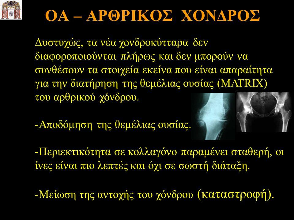 ΟΑ – ΑΡΘΡΙΚΟΣ ΧΟΝΔΡΟΣ