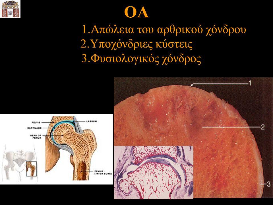 ΟΑ 1. Απώλεια του αρθρικού χόνδρου 2. Υποχόνδριες κύστεις 3
