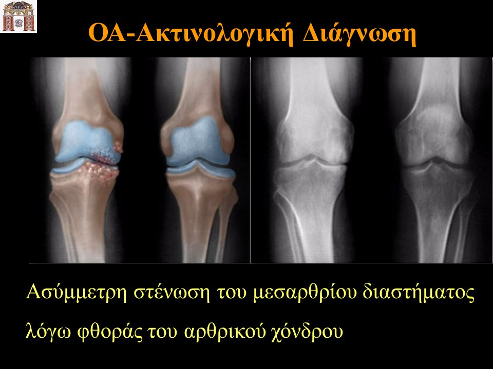 ΟΑ-Ακτινολογική Διάγνωση