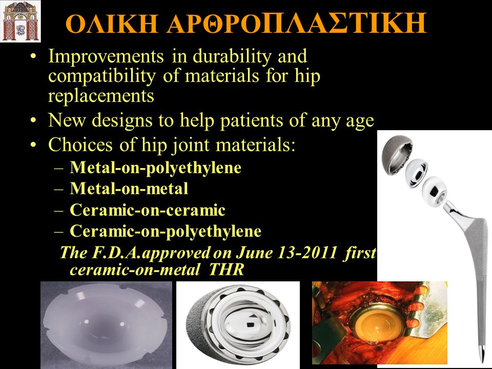 ΟΛΙΚΗ ΑΡΘΡΟΠΛΑΣΤΙΚΗ Improvements in durability and compatibility of materials for hip replacements.