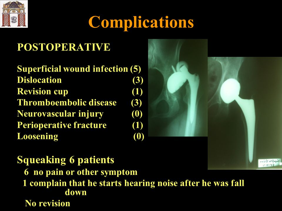 Complications POSTOPERATIVE Squeaking 6 patients