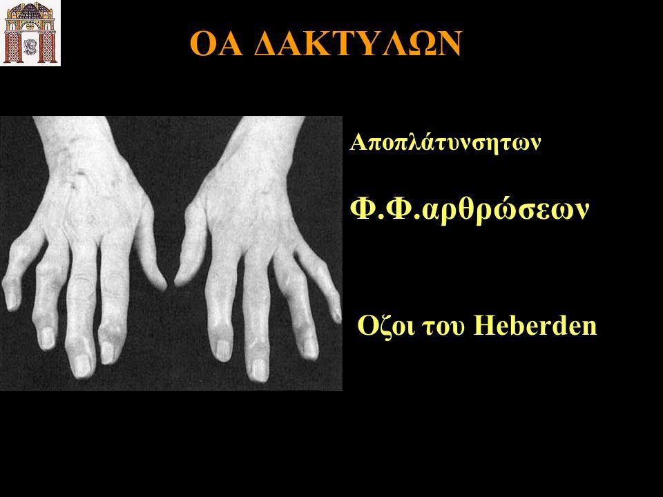 OA ΔΑΚΤΥΛΩΝ Αποπλάτυνσητων Φ.Φ.αρθρώσεων Οζοι του Heberden