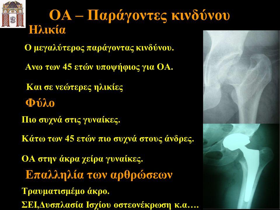 OA – Παράγοντες κινδύνου