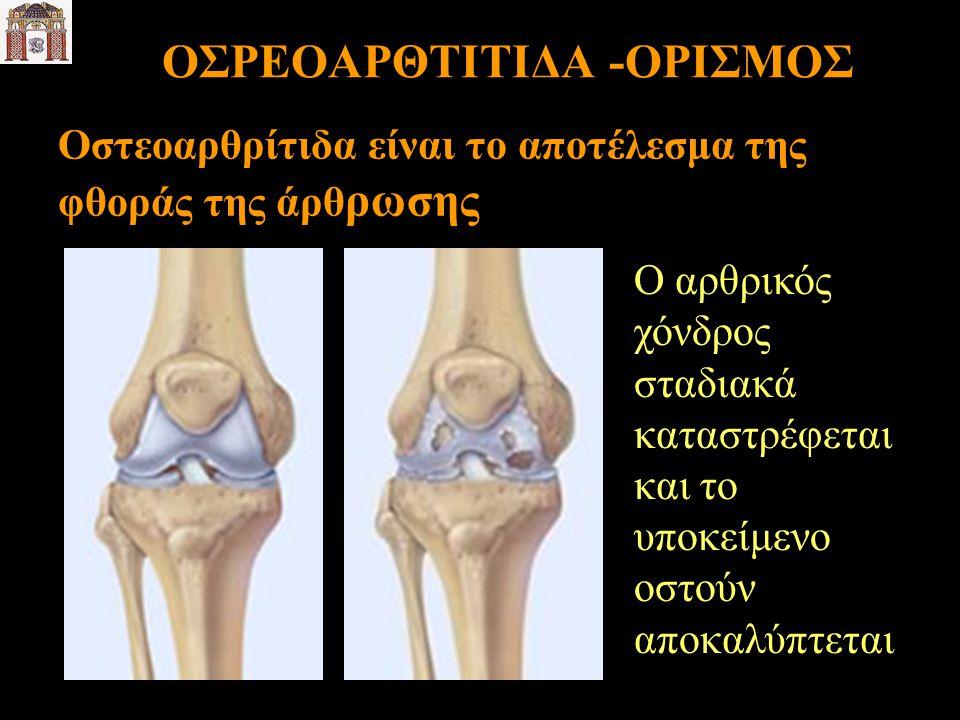ΟΣΡΕΟΑΡΘΤΙΤΙΔΑ -ΟΡΙΣΜΟΣ