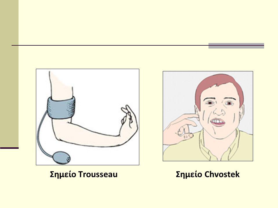 Σημείο Τrousseau Σημείο Chvostek