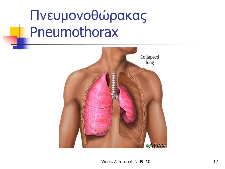 Πνευμονοθώρακας Pneumothorax