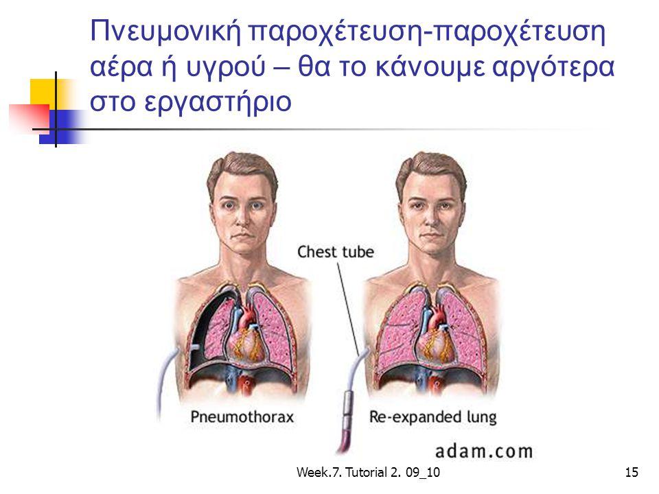 Πνευμονική παροχέτευση-παροχέτευση αέρα ή υγρού – θα το κάνουμε αργότερα στο εργαστήριο