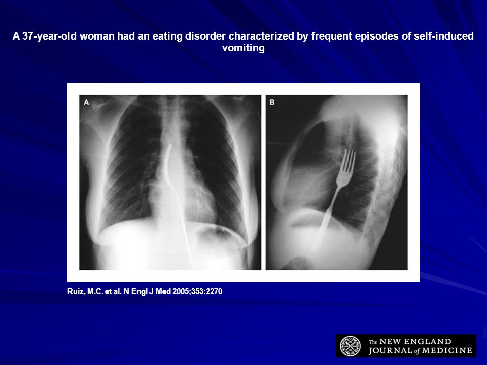 A 37-year-old woman had an eating disorder characterized by frequent episodes of self-induced vomiting