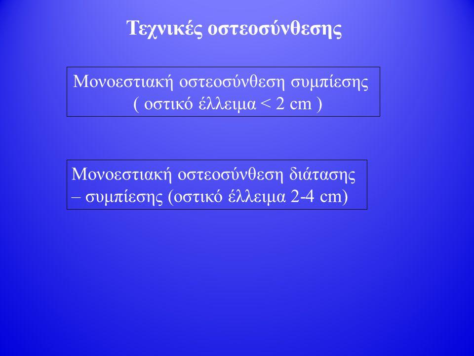 Τεχνικές οστεοσύνθεσης