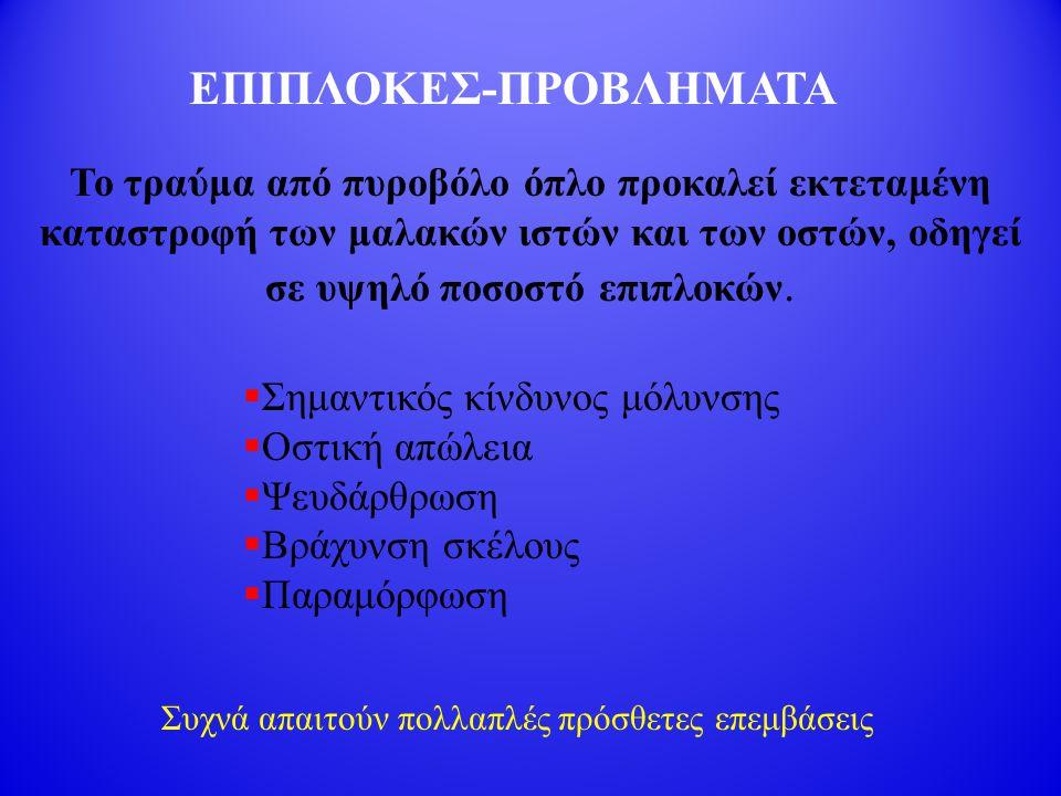 ΕΠΙΠΛΟΚΕΣ-ΠΡΟΒΛΗΜΑΤΑ