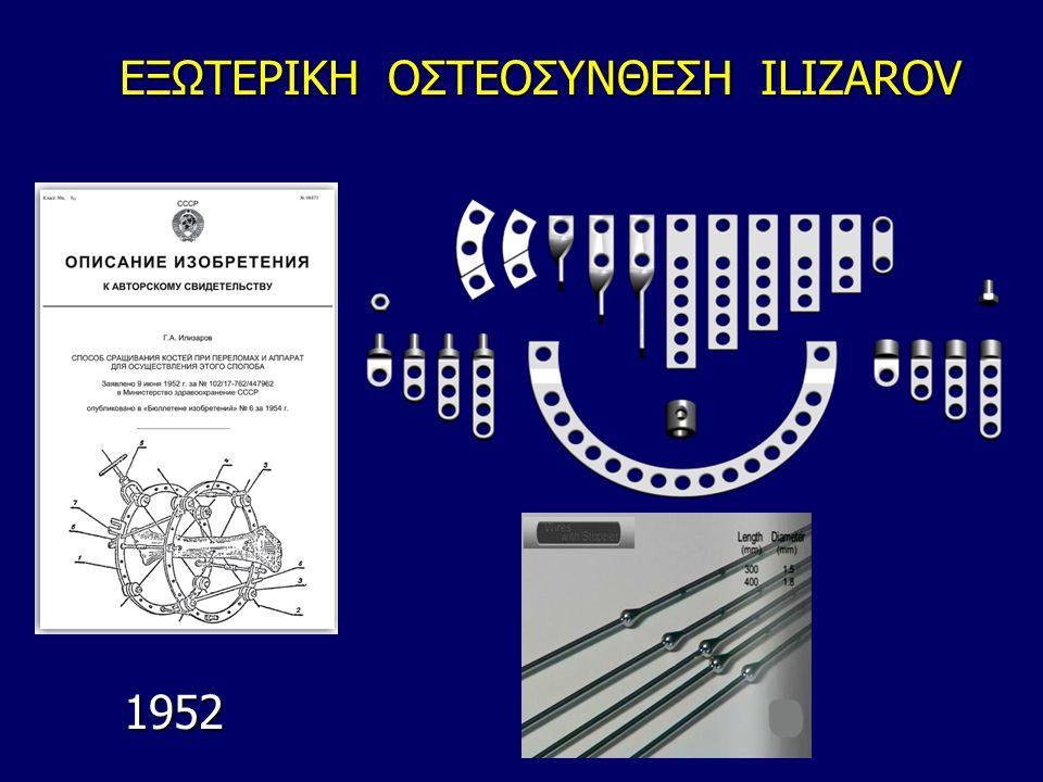 ΕΞΩΤΕΡΙΚΗ ΟΣΤΕΟΣΥΝΘΕΣΗ ILIZAROV