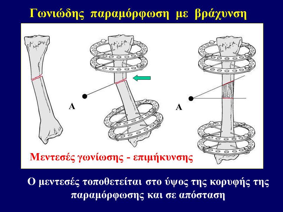 Γωνιώδης παραμόρφωση με βράχυνση Μεντεσές γωνίωσης - επιμήκυνσης