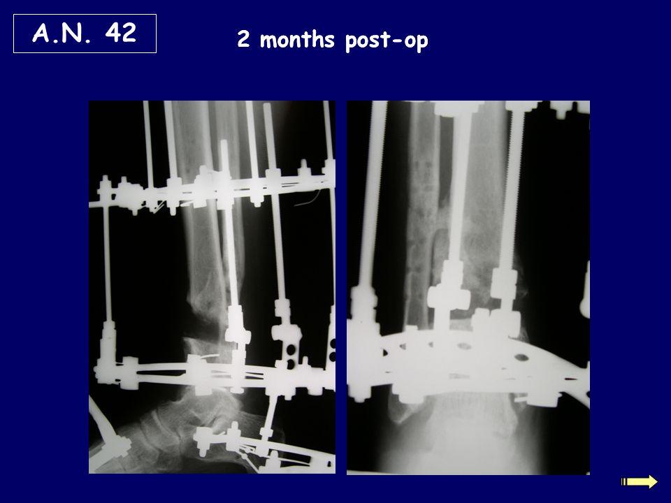 A.N. 42 2 months post-op 2 months post-op