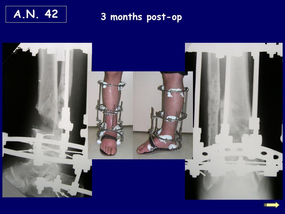 A.N. 42 3 months post-op