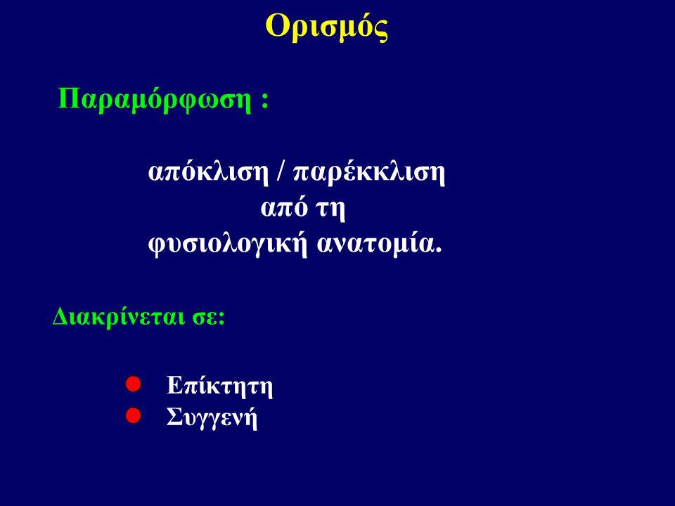 Ορισμός Παραμόρφωση : απόκλιση / παρέκκλιση από τη