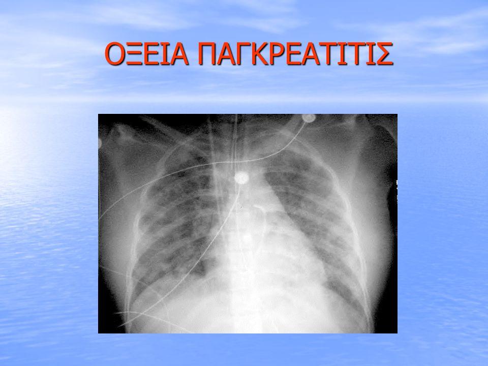 ΟΞΕΙΑ ΠΑΓΚΡΕΑΤΙΤΙΣ