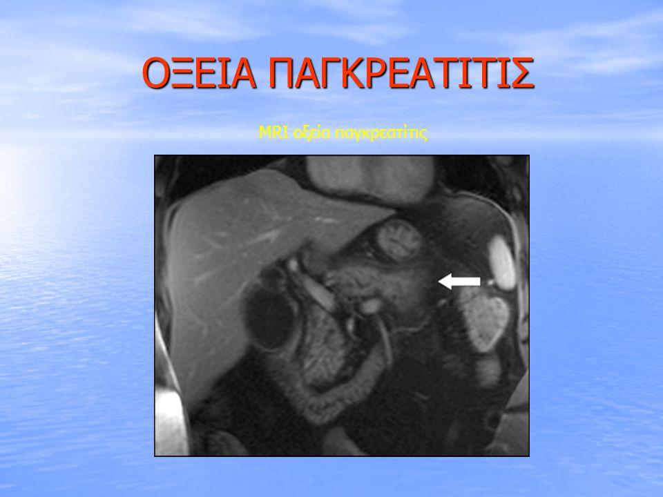 ΟΞΕΙΑ ΠΑΓΚΡΕΑΤΙΤΙΣ MRI οξεία παγκρεατίτις