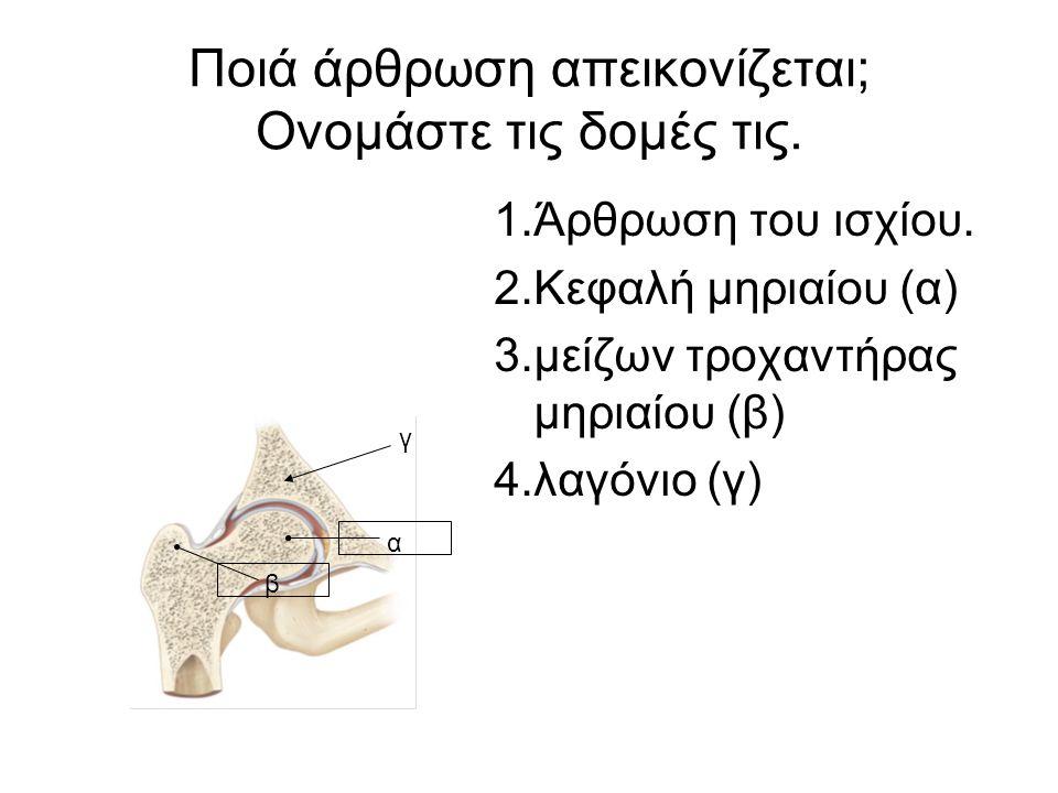 Ποιά άρθρωση απεικονίζεται; Ονομάστε τις δομές τις.