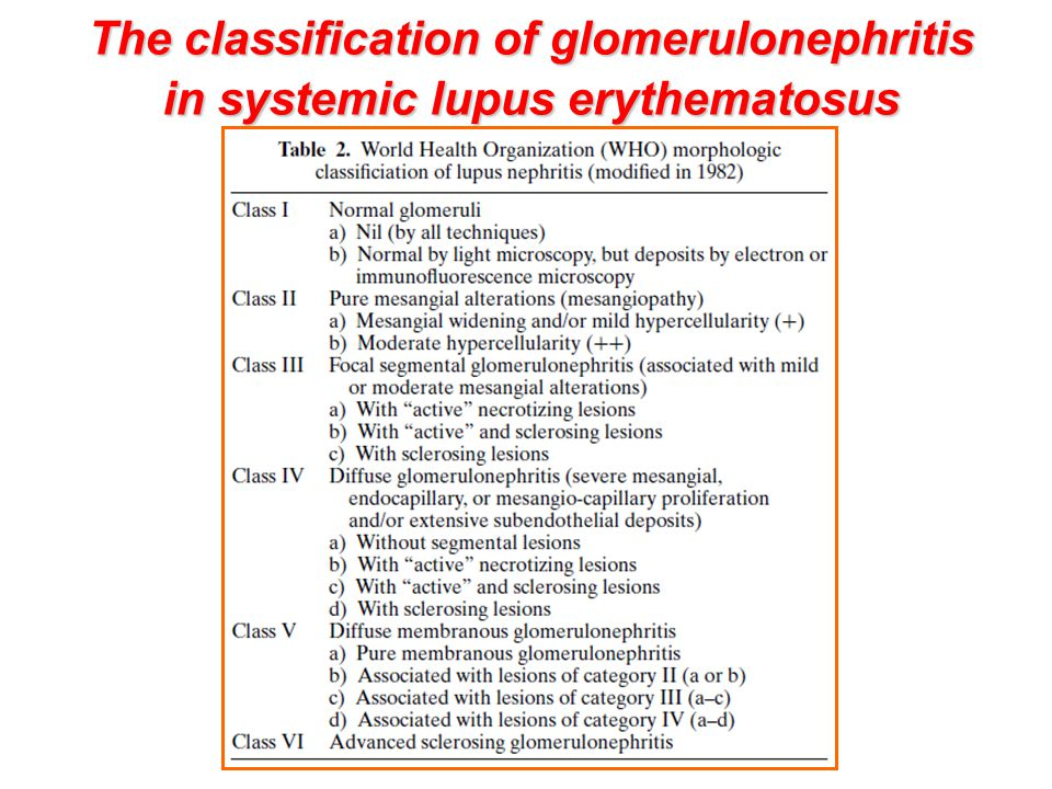 The classification of glomerulonephritis in systemic lupus erythematosus