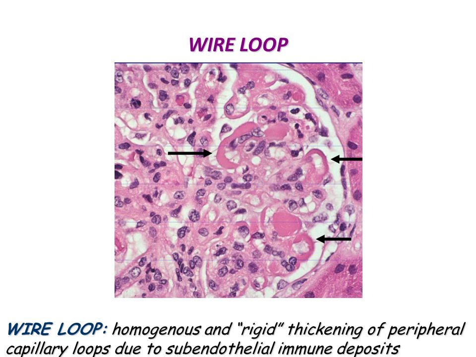 WIRE LOOP WIRE LOOP: homogenous and rigid thickening of peripheral capillary loops due to subendothelial immune deposits.