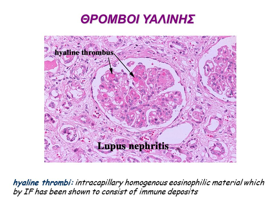 ΘΡΟΜΒΟΙ ΥΑΛΙΝΗΣ hyaline thrombi: intracapillary homogenous eosinophilic material which by IF has been shown to consist of immune deposits.