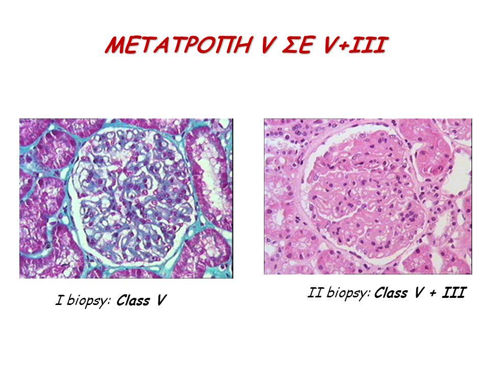 ΜΕΤΑΤΡΟΠΗ V ΣΕ V+ΙΙΙ II biopsy: Class V + III I biopsy: Class V