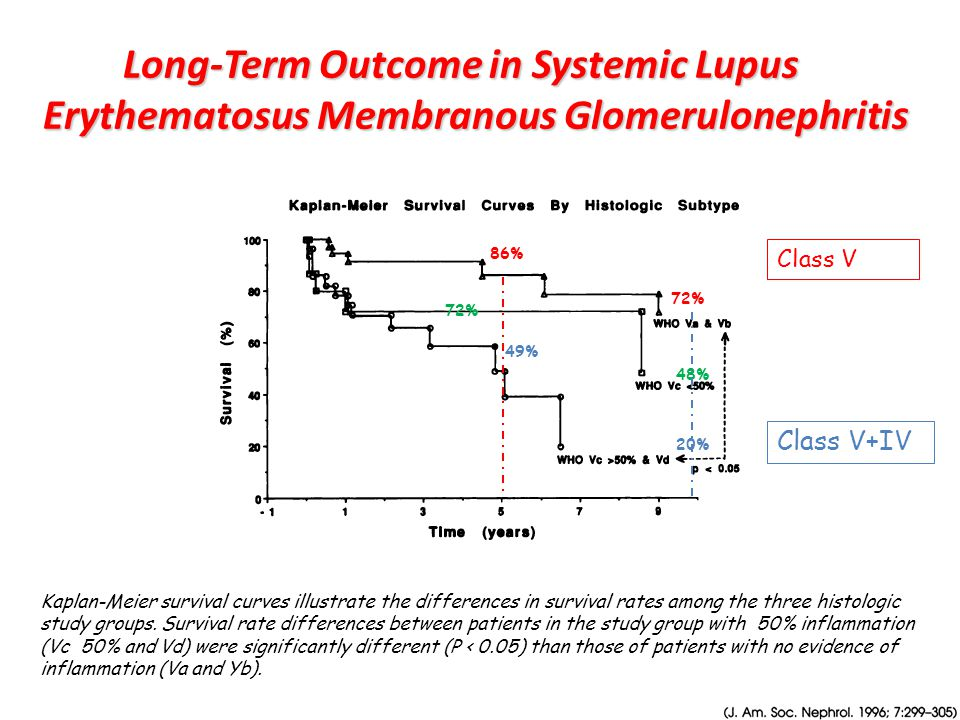 Long-Term Outcome in Systemic Lupus Erythematosus Membranous Glomerulonephritis