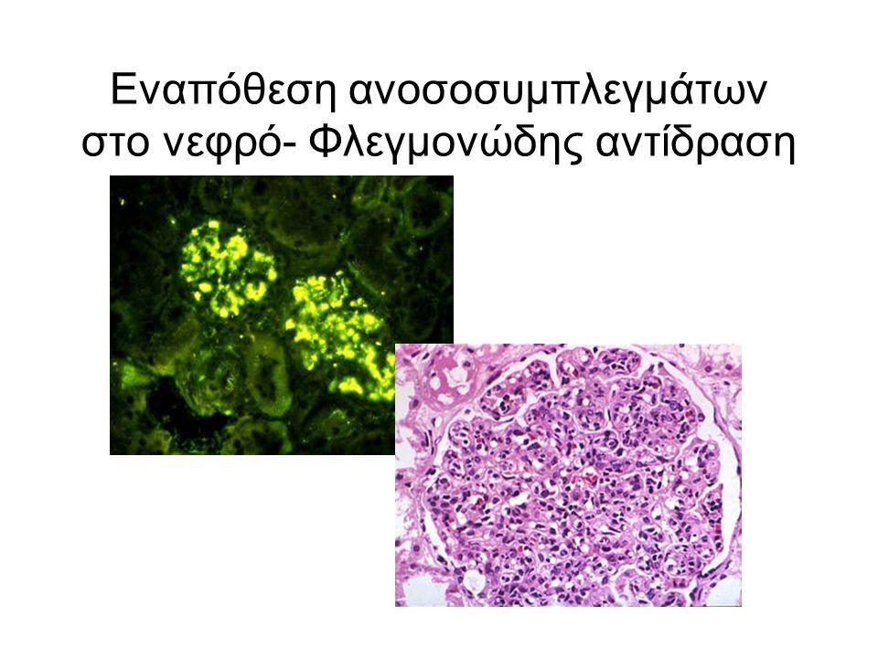 Εναπόθεση ανοσοσυμπλεγμάτων στο νεφρό- Φλεγμονώδης αντίδραση