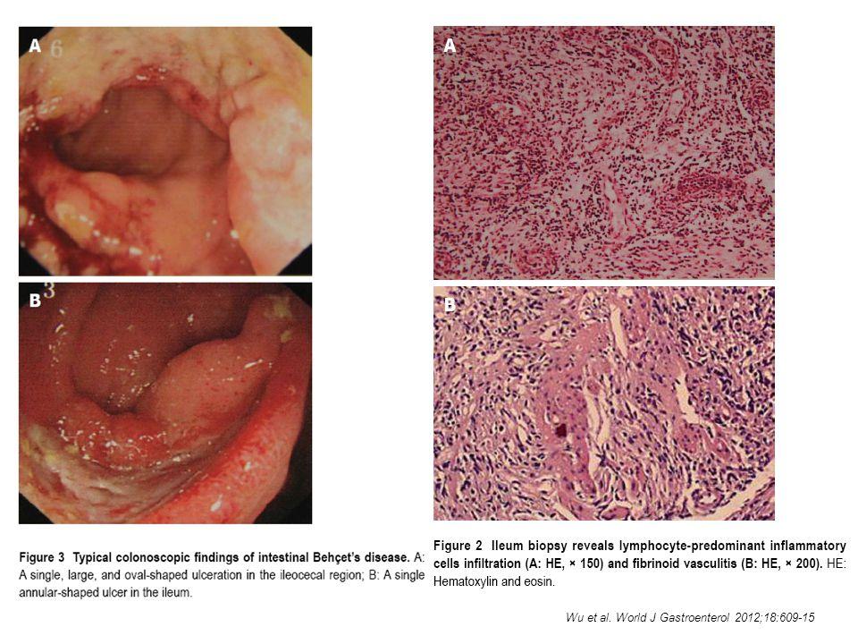 Wu et al. World J Gastroenterol 2012;18:609-15