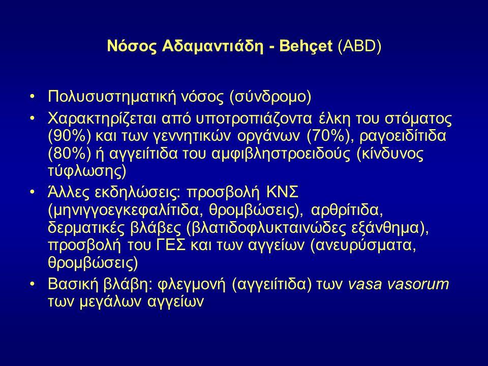 Νόσος Αδαμαντιάδη - Behçet (ABD)